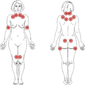 Que por el pinchazo a la hernia intervertebral