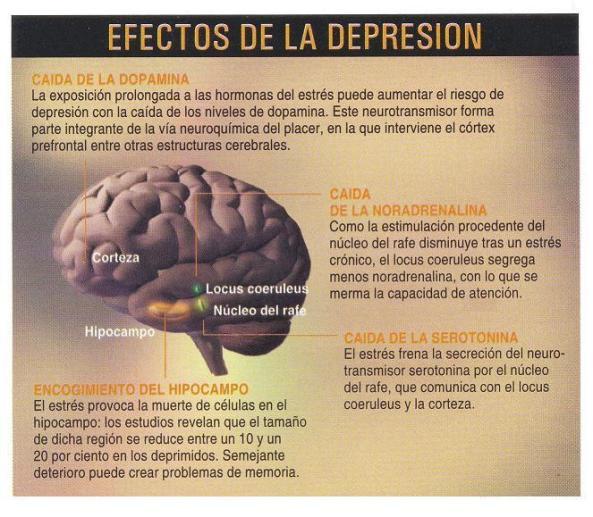 depresion1-cerebro