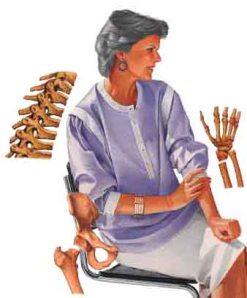osteo Propensos a fracturas