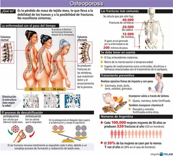 Osteoporosis prima