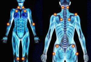 fibromialgia-puntos-sensibles
