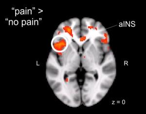 brain-pain