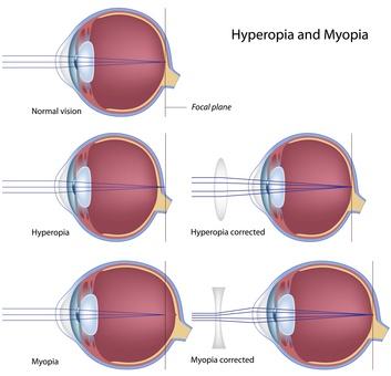 Myopia and hyperopia, eps8