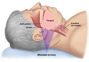 apnea-suenio-instrulab