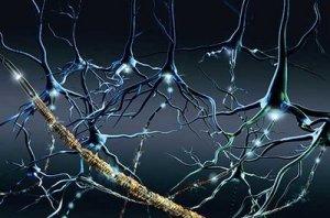 Esclerosis Multiple 4