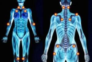 fibromialgia-duele-el-cuerpo-L-u9YHGB