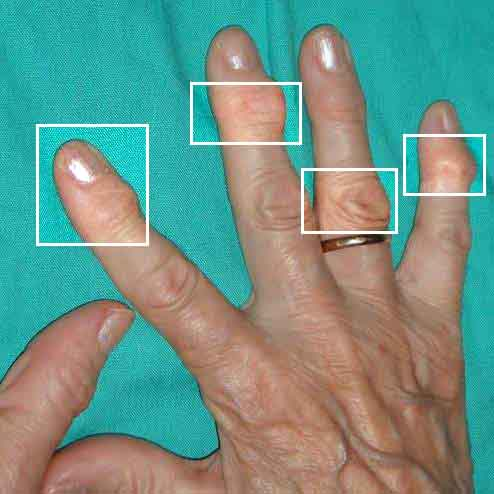 arthrite des mains