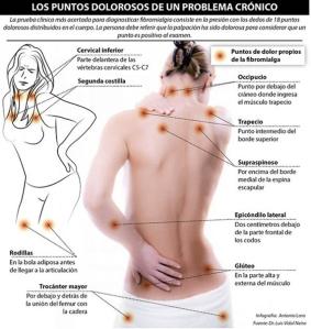 fibromialgia-prueba-clínica