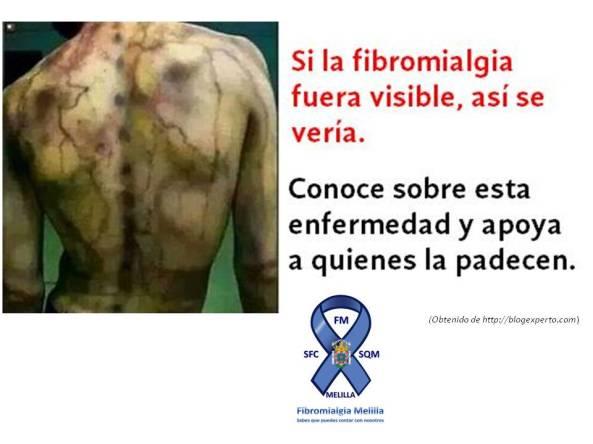 vista de la fibromialgia